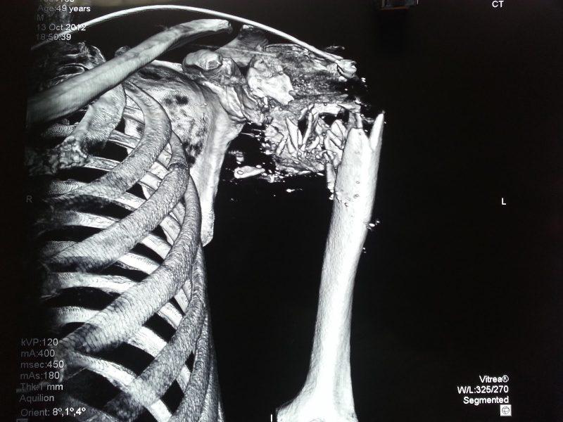 fractura húmero